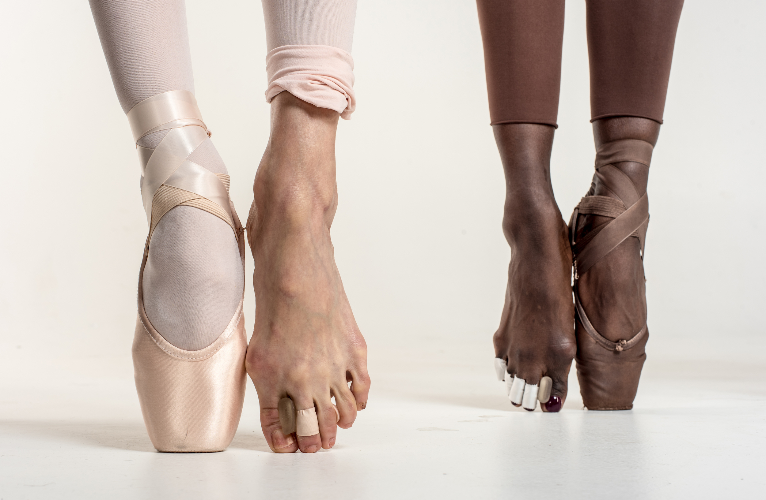 Pointe Shoe Toe Injuries